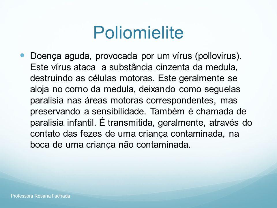 Professora Rosana Fachada Poliomielite Doença aguda, provocada por um vírus (pollovirus). Este vírus ataca a substância cinzenta da medula, destruindo