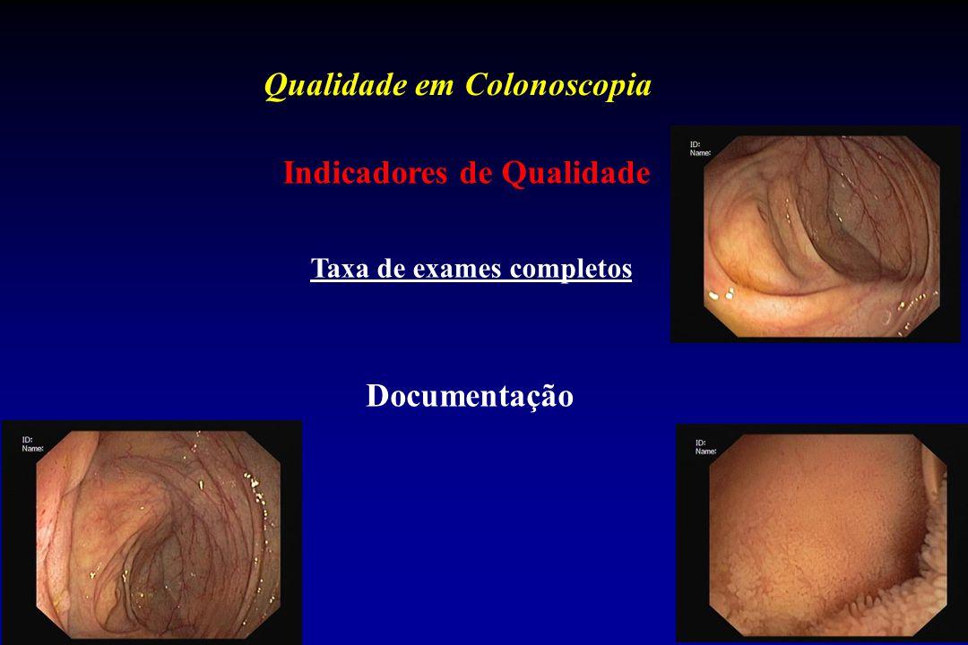 Qualidade em Colonoscopia Indicadores de Qualidade Taxa de exames completos Documentação