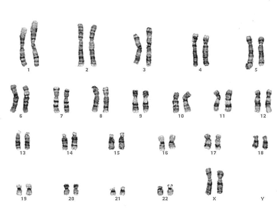 Núcleo celular 7. Cariótipo e genoma  Cariótipo: número, forma e tamanho dos cromossomos; é próprio da espécie.  Genoma: conjunto de genes de um con
