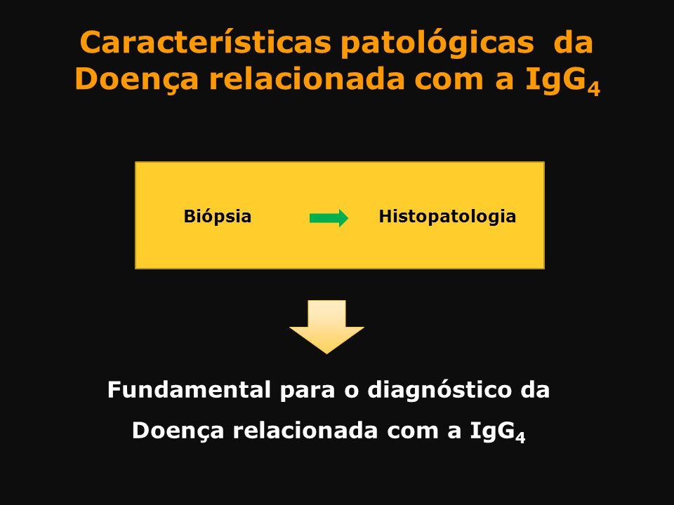 Características patológicas da Doença relacionada com a IgG 4 Biópsia Histopatologia Fundamental para o diagnóstico da Doença relacionada com a IgG 4