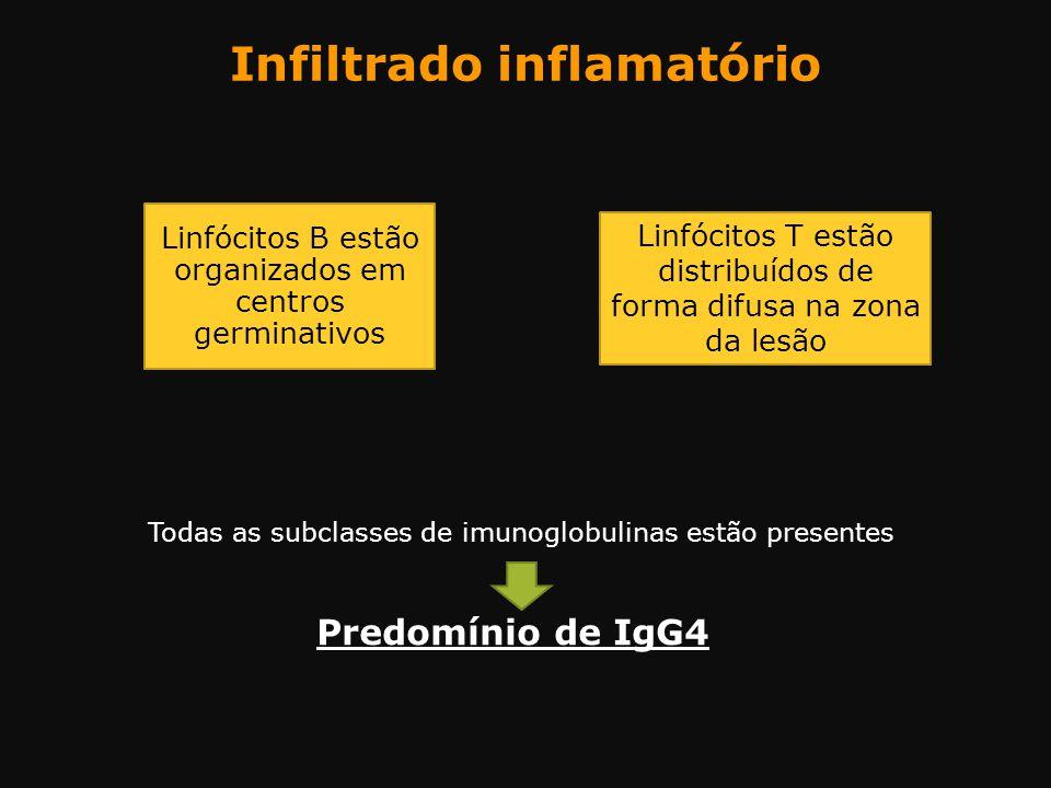Todas as subclasses de imunoglobulinas estão presentes Predomínio de IgG4 Linfócitos B estão organizados em centros germinativos Infiltrado inflamatór