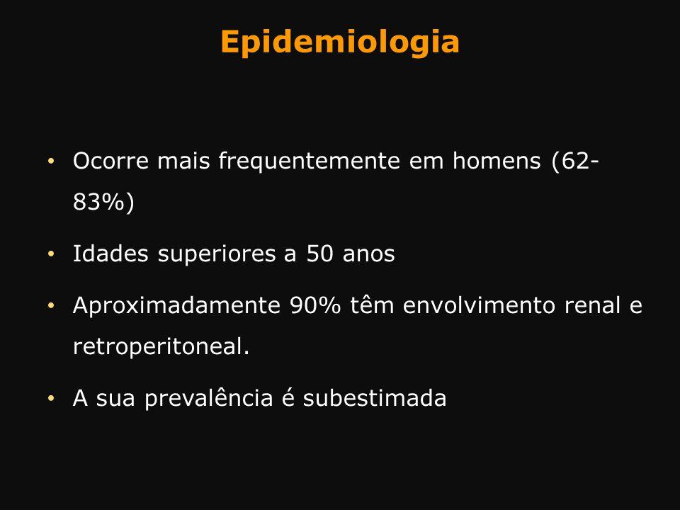Epidemiologia Ocorre mais frequentemente em homens (62- 83%) Idades superiores a 50 anos Aproximadamente 90% têm envolvimento renal e retroperitoneal.