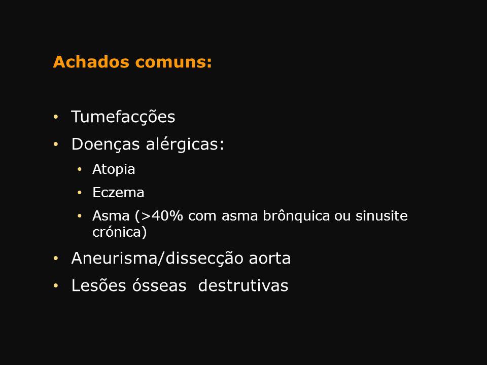 Achados comuns: Tumefacções Doenças alérgicas: Atopia Eczema Asma (>40% com asma brônquica ou sinusite crónica) Aneurisma/dissecção aorta Lesões óssea