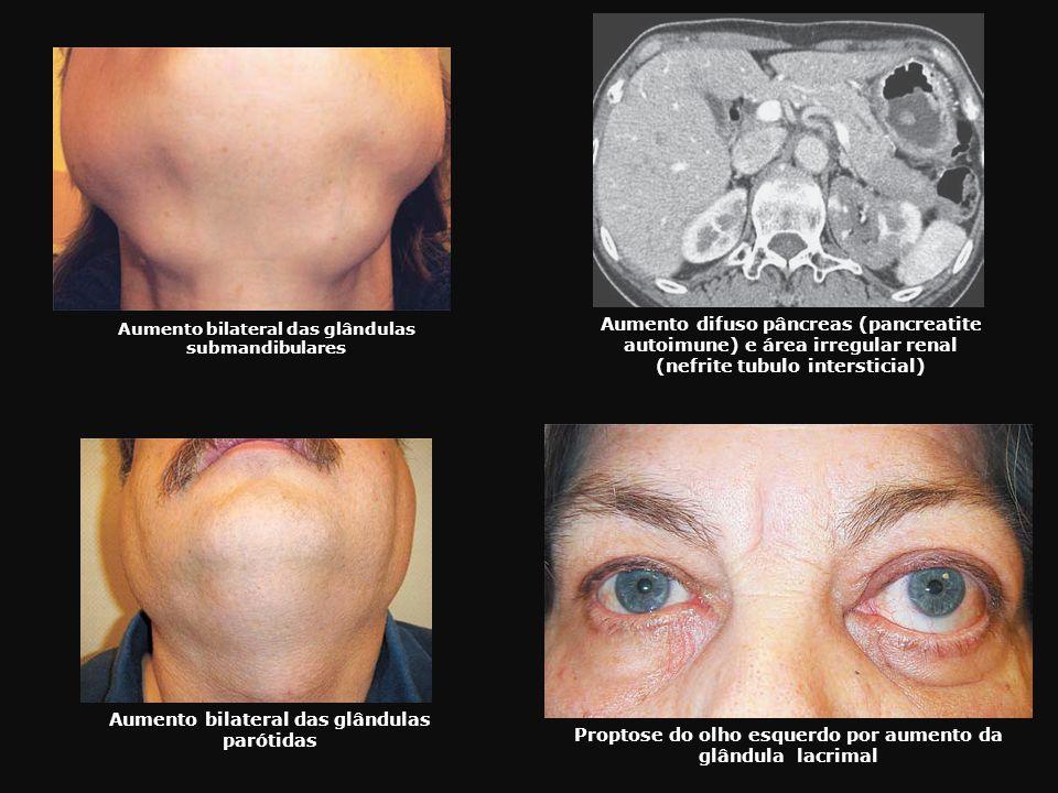 Aumento bilateral das glândulas submandibulares Aumento bilateral das glândulas parótidas Proptose do olho esquerdo por aumento da glândula lacrimal A