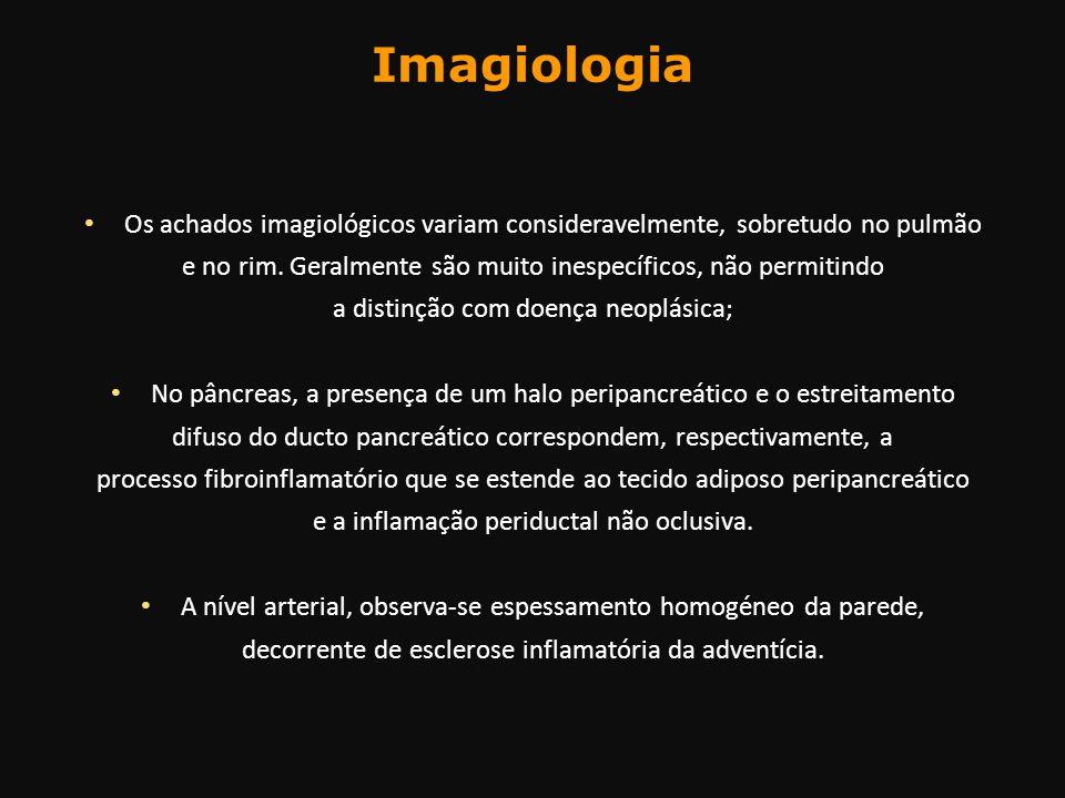 Imagiologia Os achados imagiológicos variam consideravelmente, sobretudo no pulmão e no rim. Geralmente são muito inespecíficos, não permitindo a dist