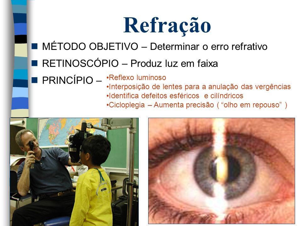 Refração MÉTODO OBJETIVO – Determinar o erro refrativo RETINOSCÓPIO – Produz luz em faixa PRINCÍPIO – Reflexo luminoso Interposição de lentes para a a