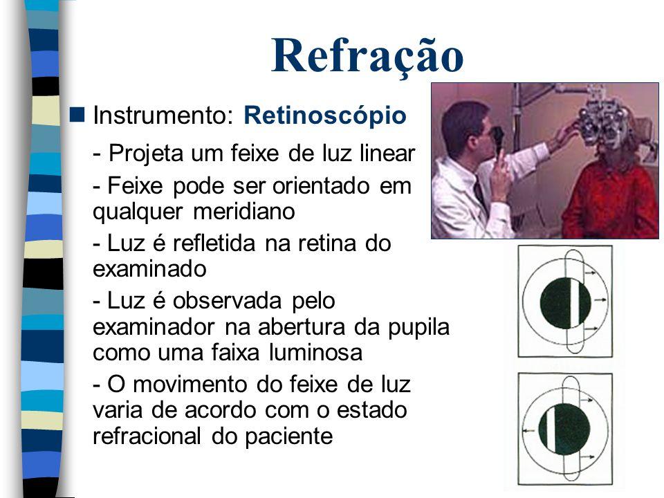 Refração Instrumento: Retinoscópio - Projeta um feixe de luz linear - Feixe pode ser orientado em qualquer meridiano - Luz é refletida na retina do ex