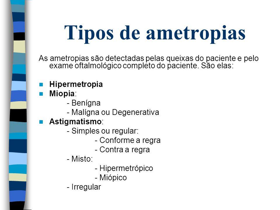 Tipos de ametropias As ametropias são detectadas pelas queixas do paciente e pelo exame oftalmológico completo do paciente. São elas: Hipermetropia Mi
