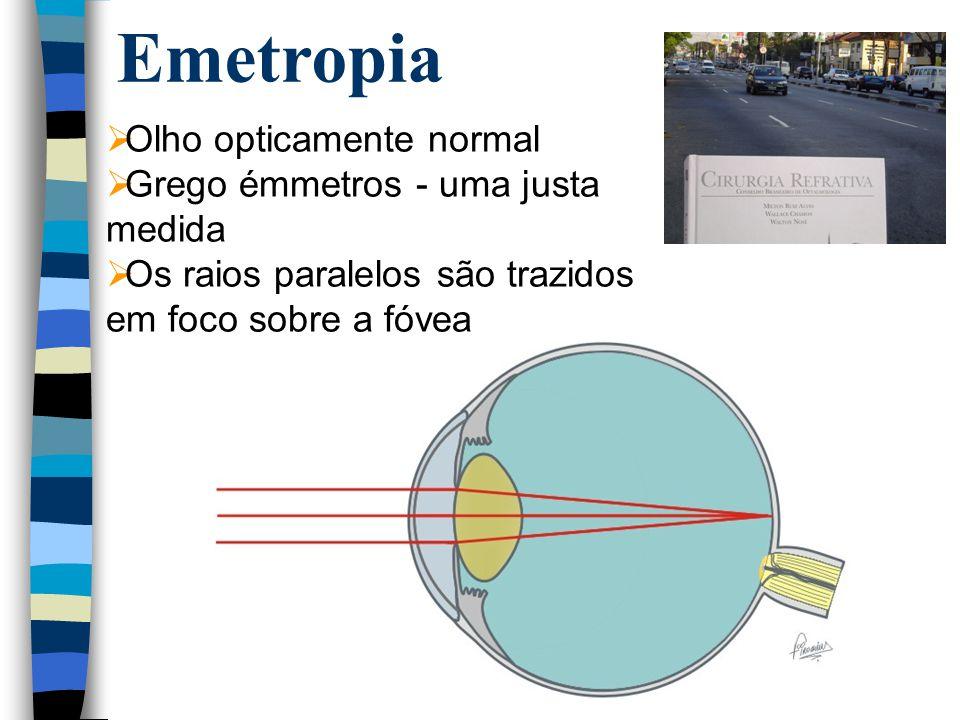 Emetropia  Olho opticamente normal  Grego émmetros - uma justa medida  Os raios paralelos são trazidos em foco sobre a fóvea