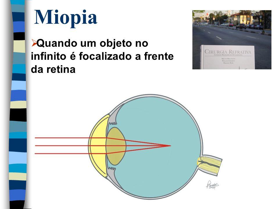 Miopia  Quando um objeto no infinito é focalizado a frente da retina