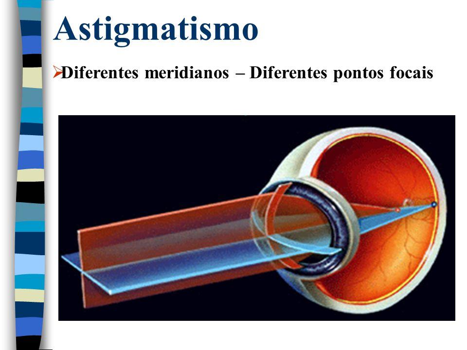 Astigmatismo  Diferentes meridianos – Diferentes pontos focais