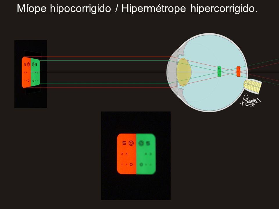Míope hipocorrigido / Hipermétrope hipercorrigido.