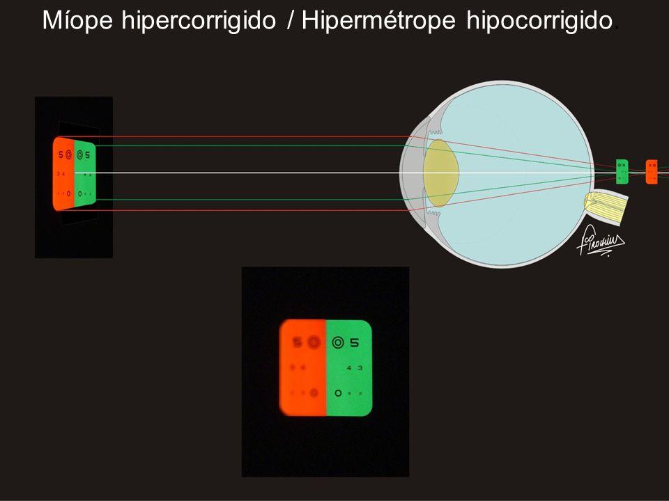 Míope hipercorrigido / Hipermétrope hipocorrigido.