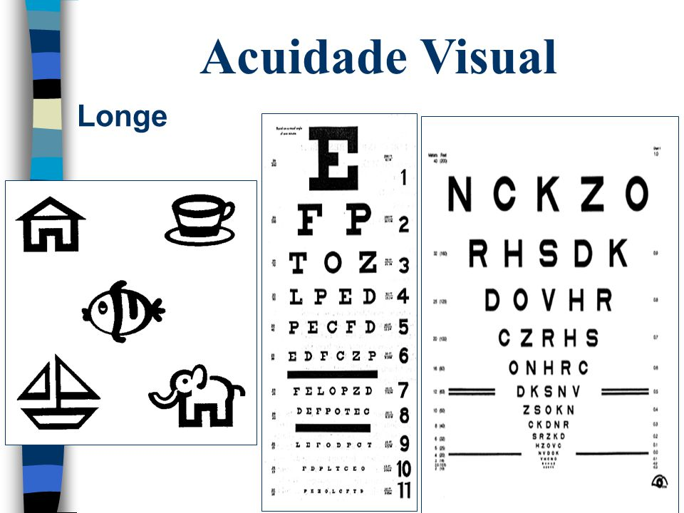Hipermetropia  Quando um objeto no infinito é focalizado além da retina  Sistema óptico reduzido ou diâmetro axial inferior