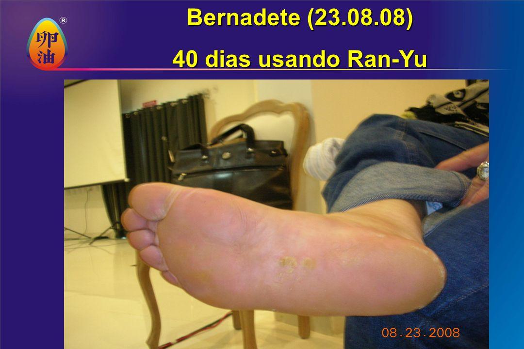 Bernadete (23.08.08) 40 dias usando Ran-Yu