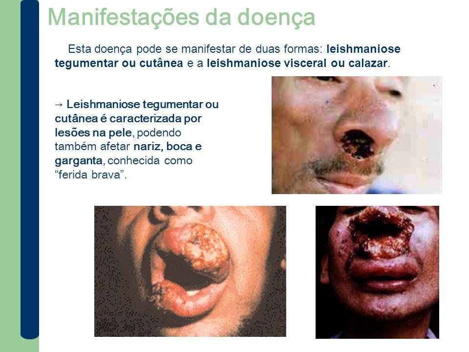 Manifestações da doença → Leishmaniose tegumentar ou cutânea é caracterizada por lesões na pele, podendo também afetar nariz, boca e garganta, conheci