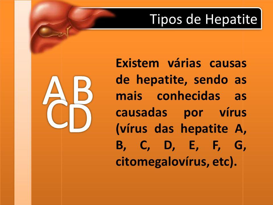 Tipos de Hepatite Existem várias causas de hepatite, sendo as mais conhecidas as causadas por vírus (vírus das hepatite A, B, C, D, E, F, G, citomegal