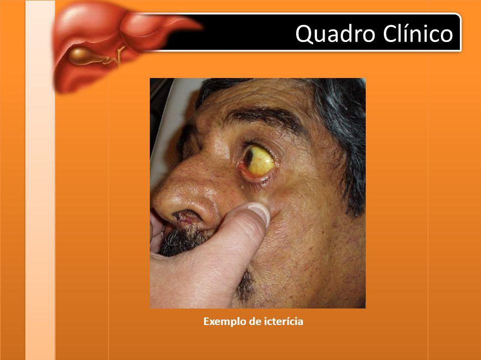 Quadro Clínico urina cor de coca-cola (colúria) e fezes claras, tipo massa de vidraceiro (acolia fecal).