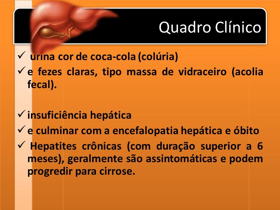 Quadro Clínico urina cor de coca-cola (colúria) e fezes claras, tipo massa de vidraceiro (acolia fecal). insuficiência hepática e culminar com a encef