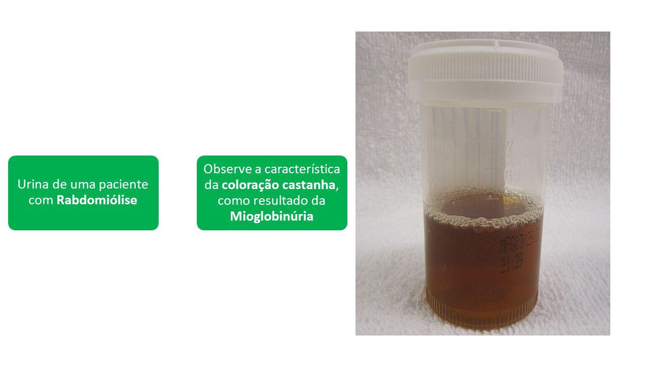 Urina de uma paciente com Rabdomiólise Observe a característica da coloração castanha, como resultado da Mioglobinúria