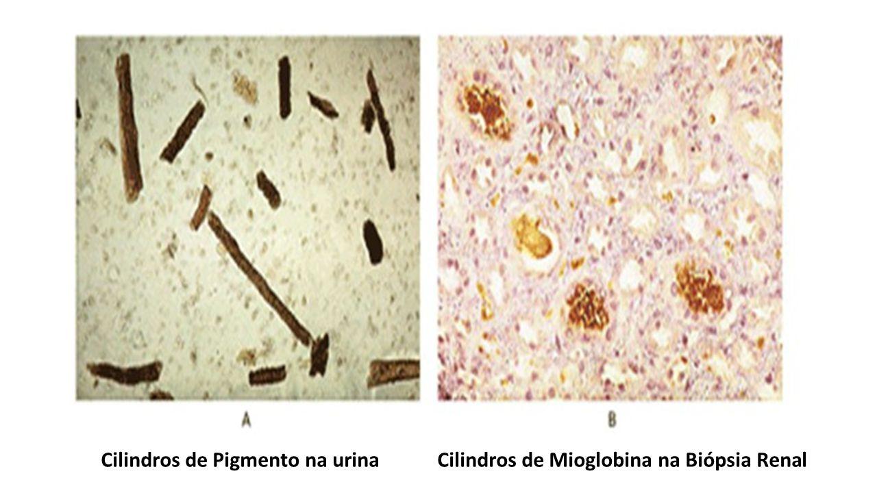 Cilindros de Pigmento na urinaCilindros de Mioglobina na Biópsia Renal