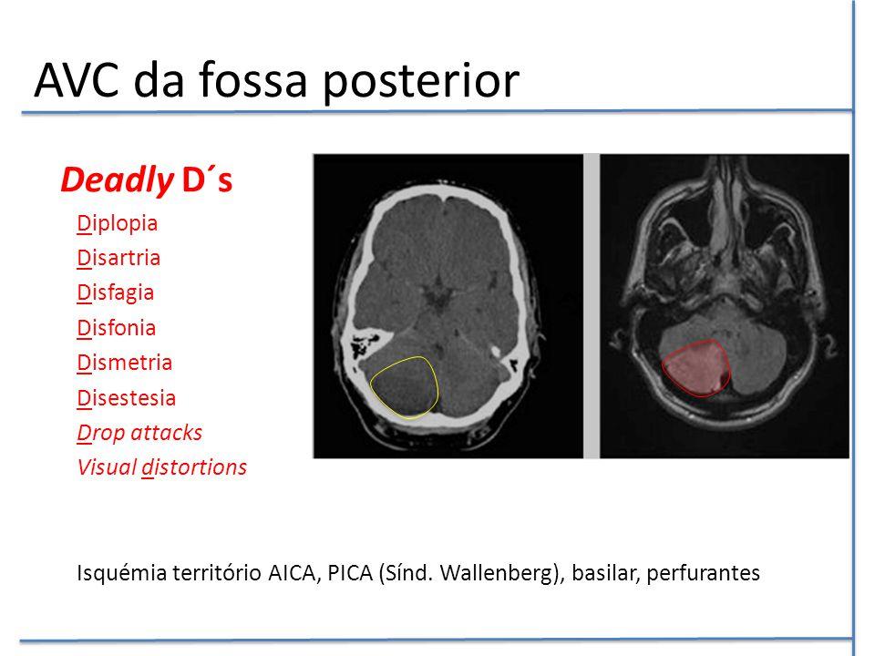 AVC da fossa posterior Deadly D´s Diplopia Disartria Disfagia Disfonia Dismetria Disestesia Drop attacks Visual distortions Isquémia território AICA,