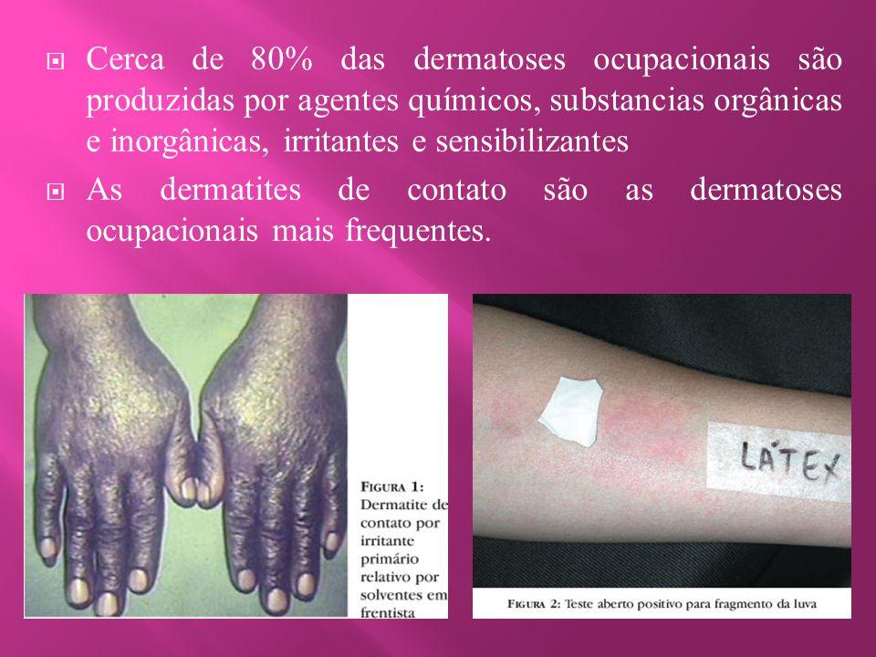  Cerca de 80% das dermatoses ocupacionais são produzidas por agentes químicos, substancias orgânicas e inorgânicas, irritantes e sensibilizantes  As