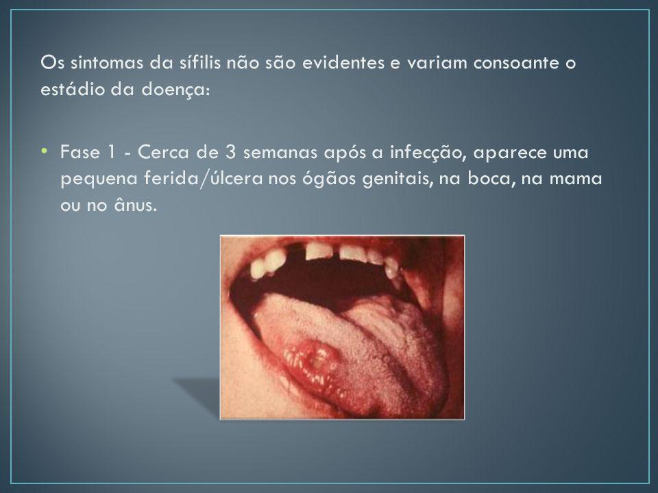 Os sintomas da sífilis não são evidentes e variam consoante o estádio da doença: Fase 1 - Cerca de 3 semanas após a infecção, aparece uma pequena ferida/úlcera nos ógãos genitais, na boca, na mama ou no ânus.