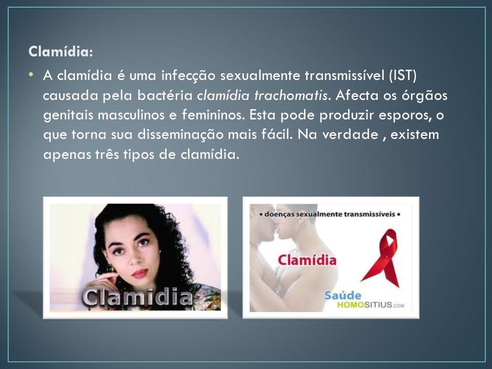Clamídia: A clamídia é uma infecção sexualmente transmissível (IST) causada pela bactéria clamídia trachomatis.