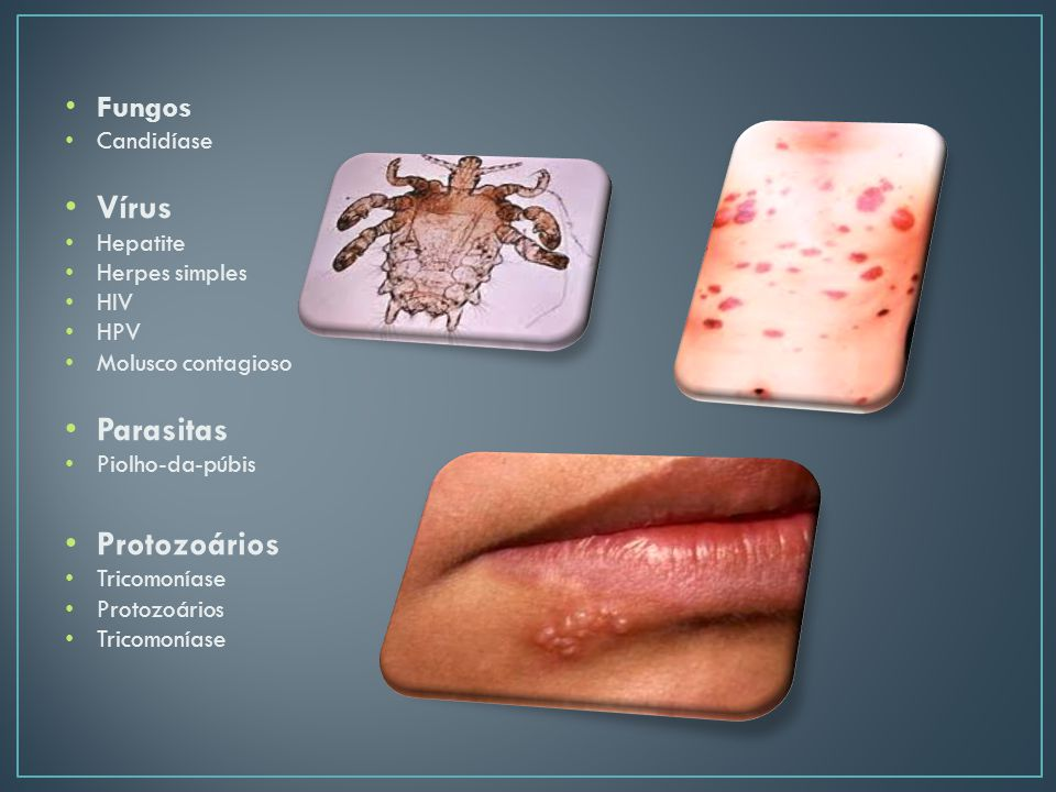 Fungos Candidíase Vírus Hepatite Herpes simples HIV HPV Molusco contagioso Parasitas Piolho-da-púbis Protozoários Tricomoníase Protozoários Tricomoníase