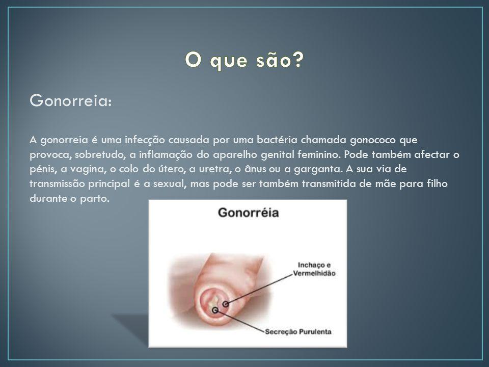 Gonorreia: A gonorreia é uma infecção causada por uma bactéria chamada gonococo que provoca, sobretudo, a inflamação do aparelho genital feminino.