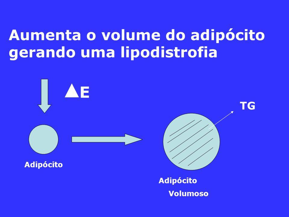 Aumenta o volume do adipócito gerando uma lipodistrofia TG Adipócito Volumoso E