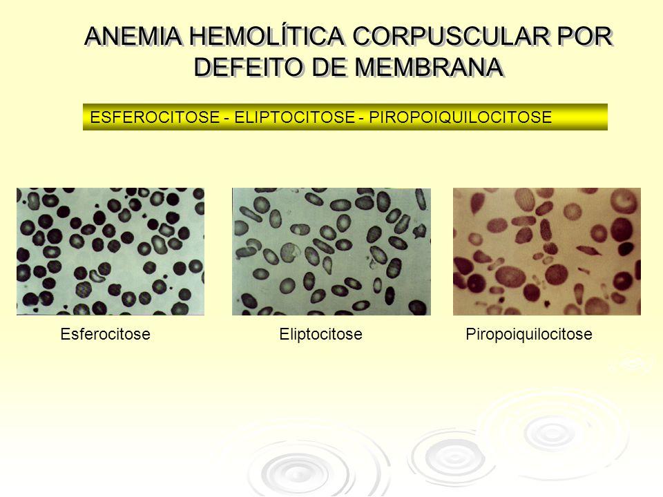 ANEMIA HEMOLÍTICA CORPUSCULAR POR DEFEITO DE MEMBRANA ESFEROCITOSE - ELIPTOCITOSE - PIROPOIQUILOCITOSE EsferocitoseEliptocitosePiropoiquilocitose