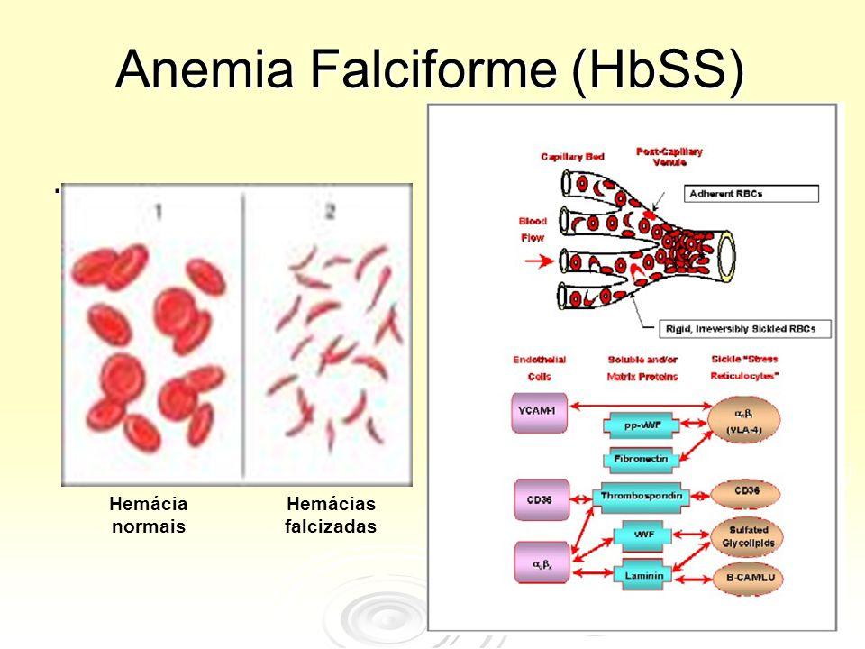 Anemia Falciforme (HbSS). Hemácia normais Hemácias falcizadas