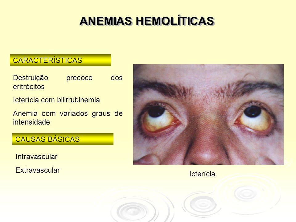 Classificação  Anemias hemolíticas por defeito corpuscular  Anemias hemolíticas por defeito extra- corpuscular  De modo geral, as anemias por defeito corpuscular são constitucionais e as anemias por defeitos extra-corpusculares são adquiridas