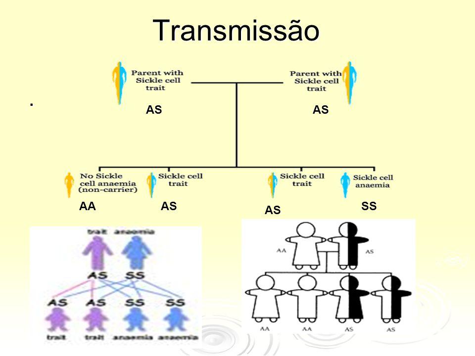 Transmissão. AS AASS