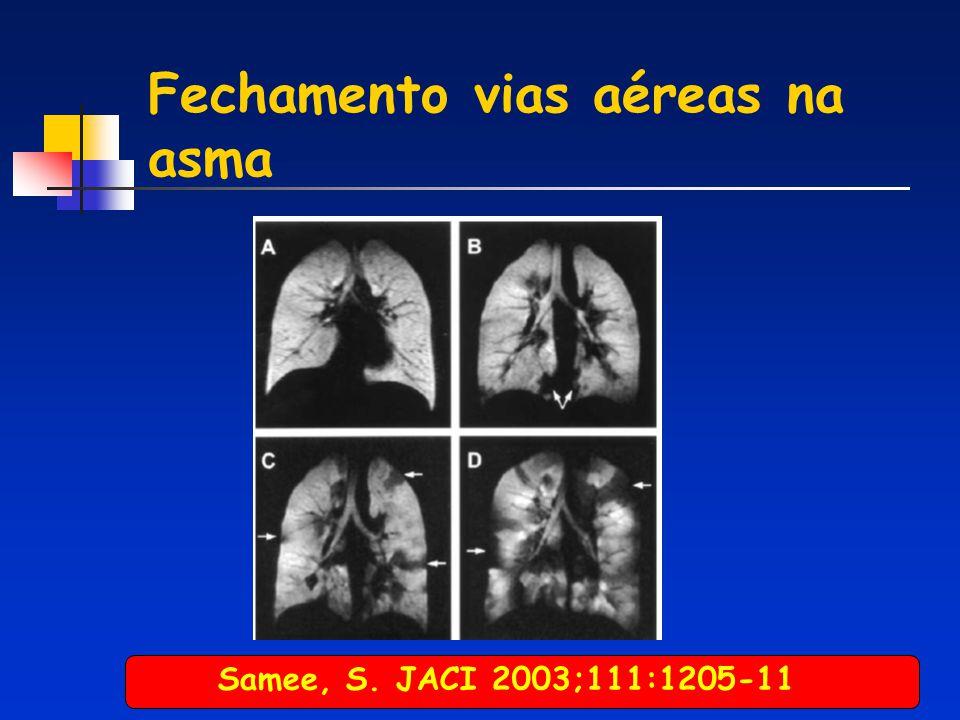 Fechamento vias aéreas na asma Samee, S. JACI 2003;111:1205-11