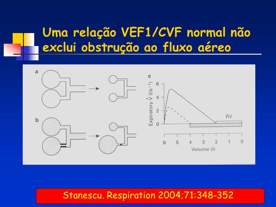 Uma relação VEF1/CVF normal não exclui obstrução ao fluxo aéreo Stanescu. Respiration 2004;71:348-352