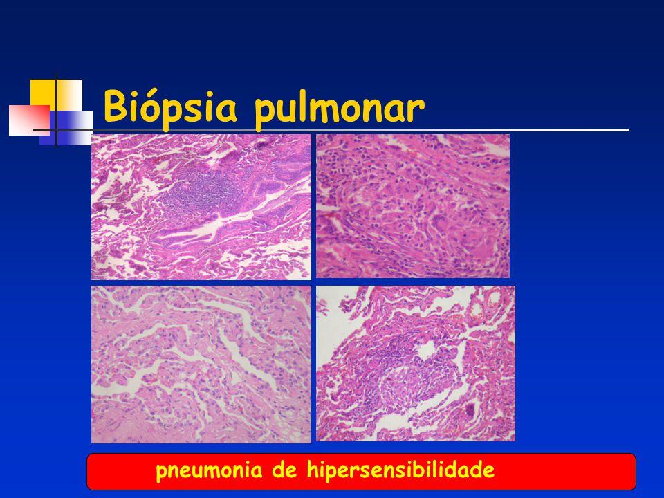 Biópsia pulmonar pneumonia de hipersensibilidade