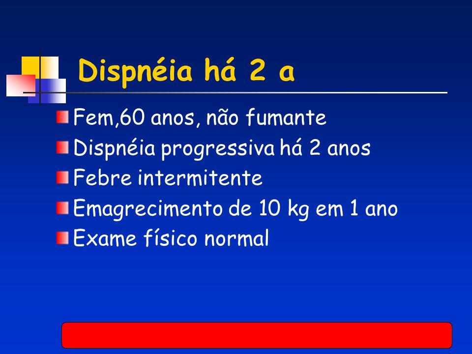Dispnéia há 2 a Fem,60 anos, não fumante Dispnéia progressiva há 2 anos Febre intermitente Emagrecimento de 10 kg em 1 ano Exame físico normal