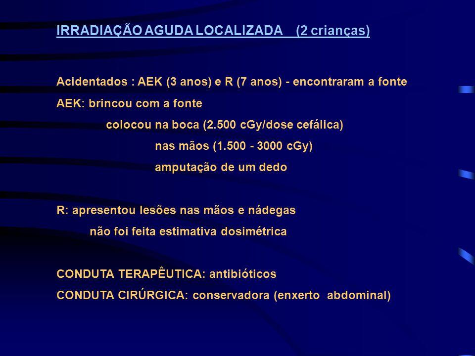 IRRADIAÇÃO AGUDA LOCALIZADA (2 crianças) Acidentados : AEK (3 anos) e R (7 anos) - encontraram a fonte AEK: brincou com a fonte colocou na boca (2.500