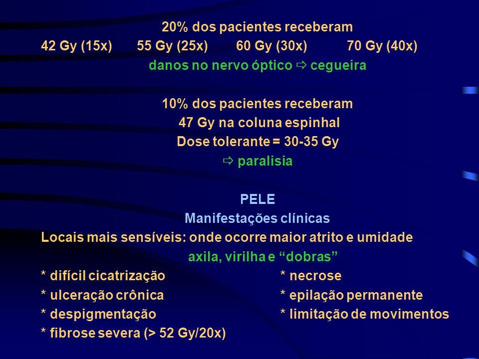 20% dos pacientes receberam 42 Gy (15x)55 Gy (25x) 60 Gy (30x) 70 Gy (40x) danos no nervo óptico  cegueira 10% dos pacientes receberam 47 Gy na colun