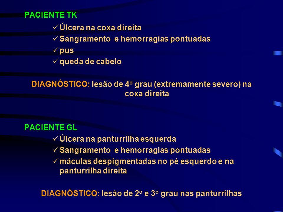 PACIENTE TK Úlcera na coxa direita Sangramento e hemorragias pontuadas pus queda de cabelo DIAGNÓSTICO: lesão de 4 o grau (extremamente severo) na cox
