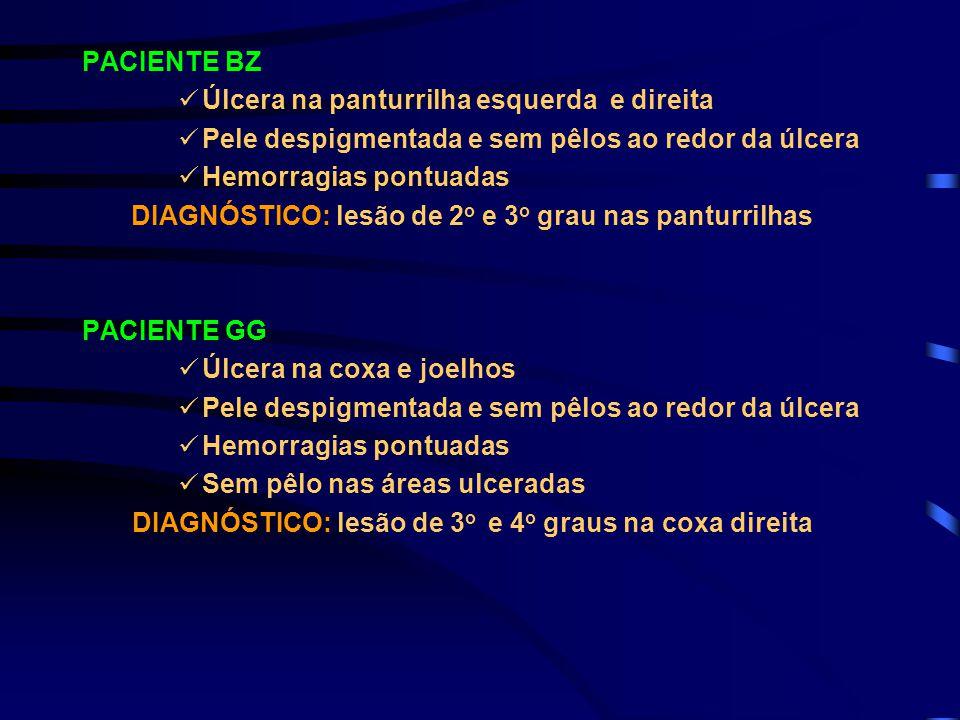 PACIENTE BZ Úlcera na panturrilha esquerda e direita Pele despigmentada e sem pêlos ao redor da úlcera Hemorragias pontuadas DIAGNÓSTICO: lesão de 2 o