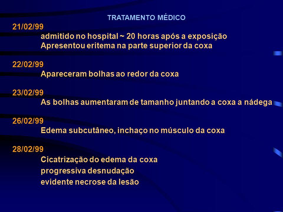TRATAMENTO MÉDICO 21/02/99 admitido no hospital ~ 20 horas após a exposição Apresentou eritema na parte superior da coxa 22/02/99 Apareceram bolhas ao