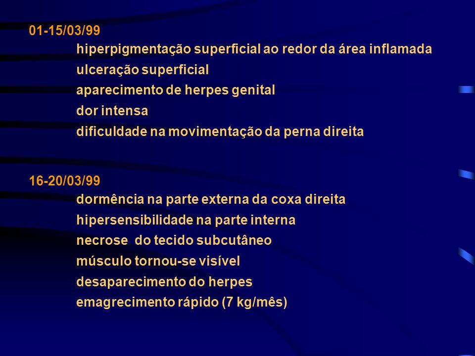 01-15/03/99 hiperpigmentação superficial ao redor da área inflamada ulceração superficial aparecimento de herpes genital dor intensa dificuldade na mo