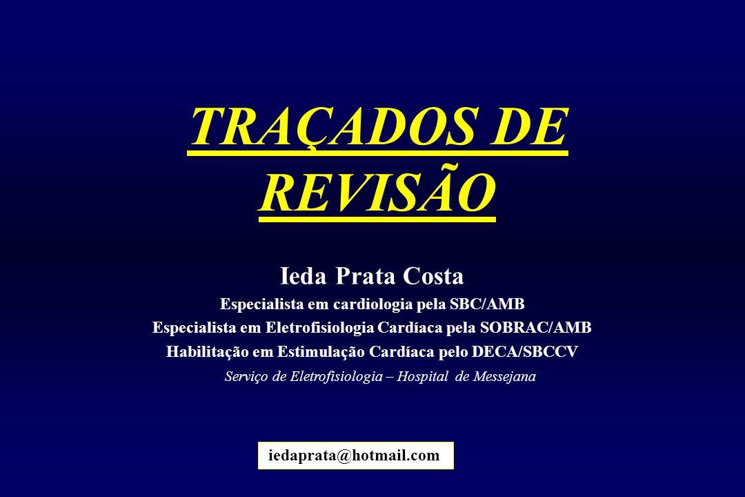 TRAÇADOS DE REVISÃO iedaprata@hotmail.com Ieda Prata Costa Especialista em cardiologia pela SBC/AMB Especialista em Eletrofisiologia Cardíaca pela SOB