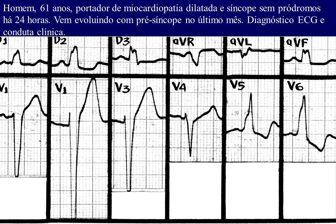 Homem, 61 anos, portador de miocardiopatia dilatada e síncope sem pródromos há 24 horas. Vem evoluindo com pré-síncope no último mês. Diagnóstico ECG
