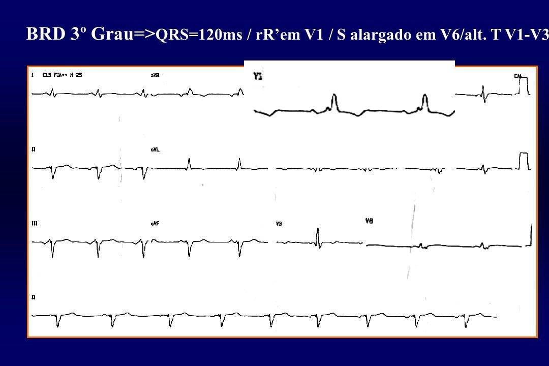 BRD 3º Grau=> QRS=120ms / rR'em V1 / S alargado em V6/alt. T V1-V3