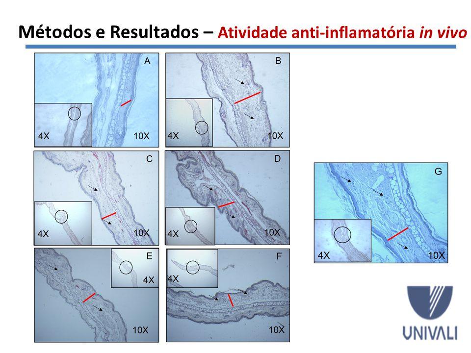 Métodos e Resultados – Atividade anti-inflamatória in vivo